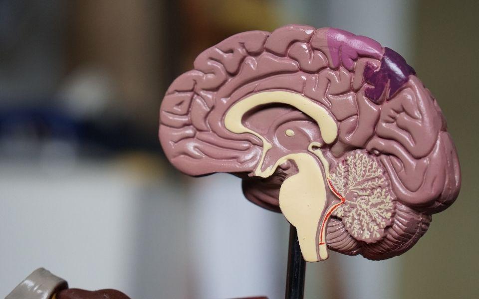 rewire the brain